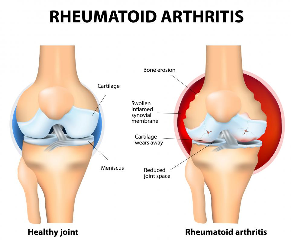 Synovial cysts in the hip are often caused by rheumatoid arthritis.