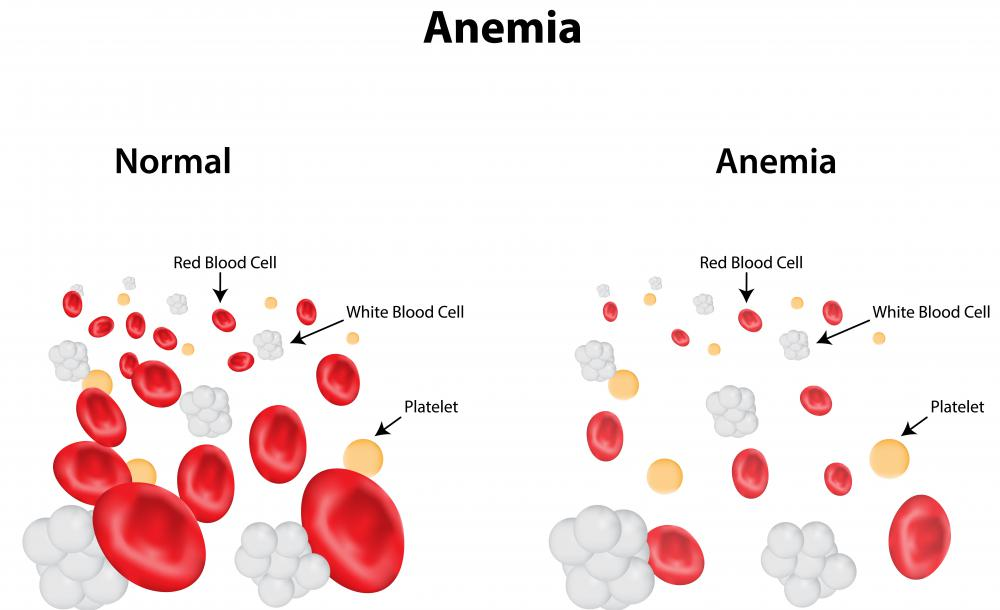 Low ferritin levels may be an indication of anemia.