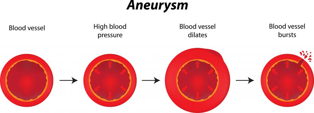 During an aneurysm, an arteriole can dilate and rupture.