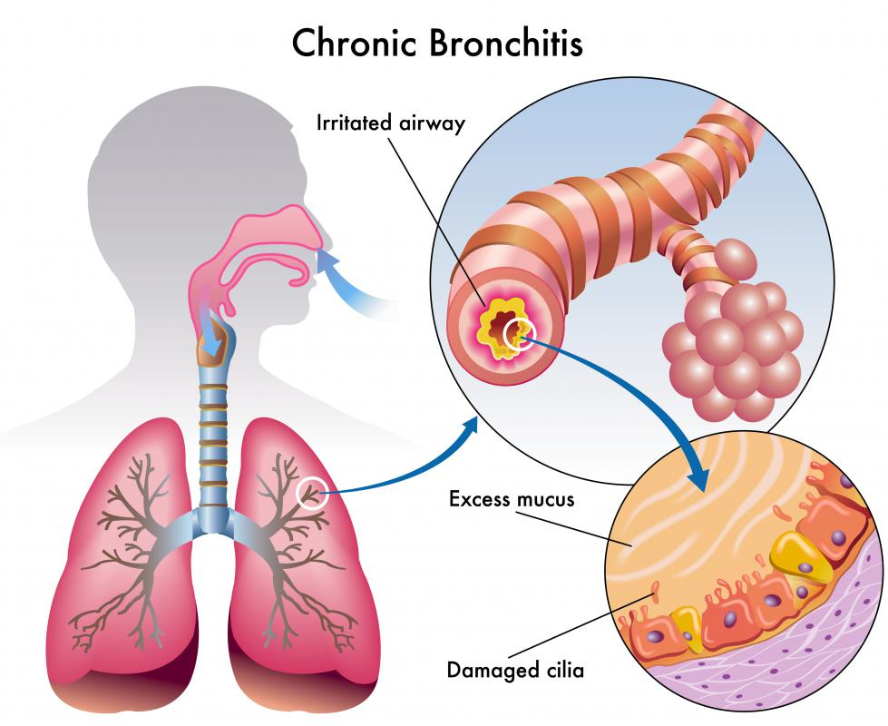 In homeopathic medicine, dulcamara is used to treat bronchitis, among other ailments.