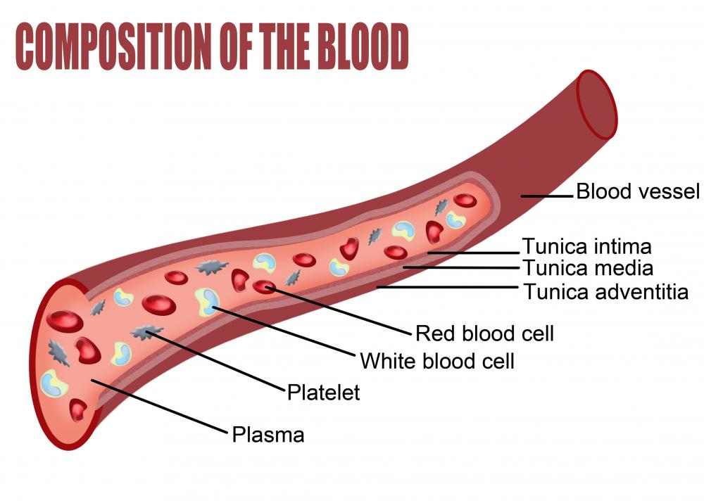 A nitinol stent is used to open a patient's blood vessel in order to relieve a blockage.