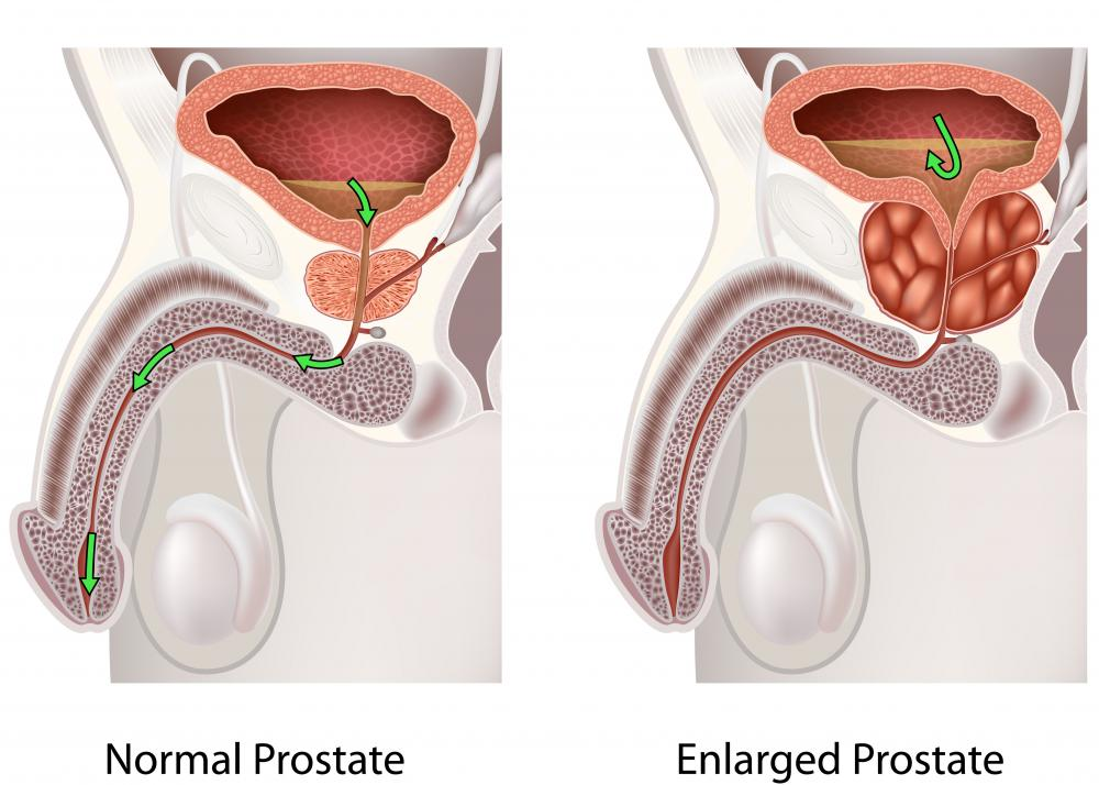 High levels of PSA may indicate an enlarged prostate.