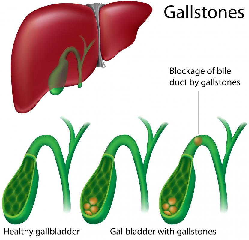 A healthy gallbladder and one with gallstones.