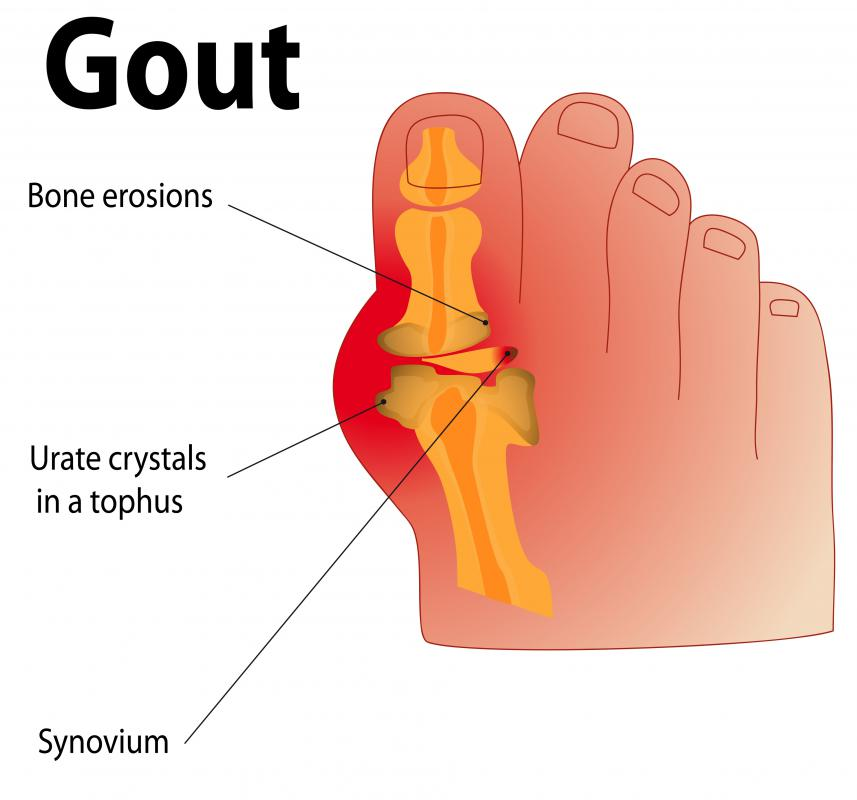 Diclofenac injections may be used to treat gout.