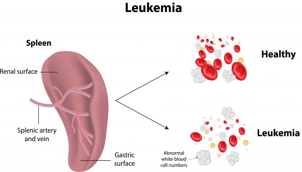Spleen disorders can be as serious as leukemia.