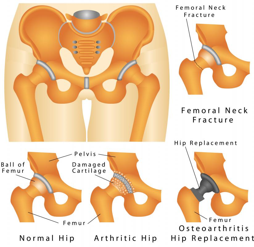 Abnormal hip ossification could result in making it difficult to walk.