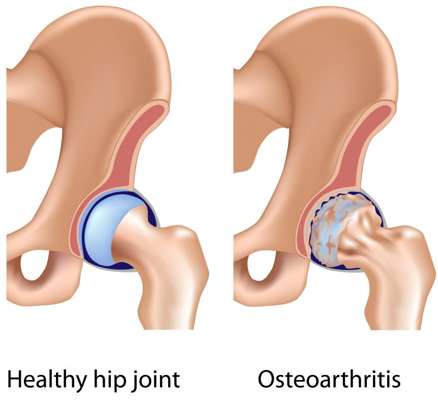 Osteoarthritis may cause hip cysts.