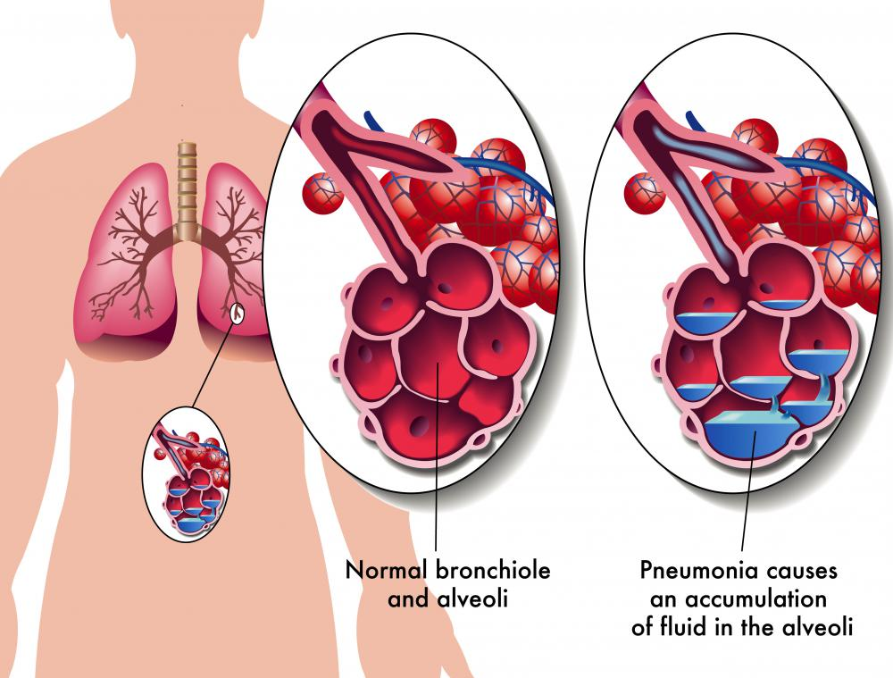 Pneumonia may cause nephritis.