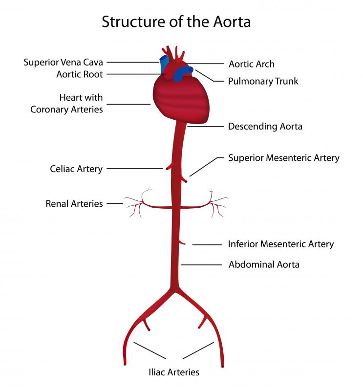 A diagram of the aorta. The abdominal aorta is a common site for arteriosclerosis.