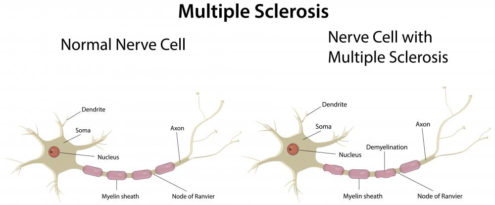Multiple sclerosis is marked by the degredation of nerve cells' myelin sheath.
