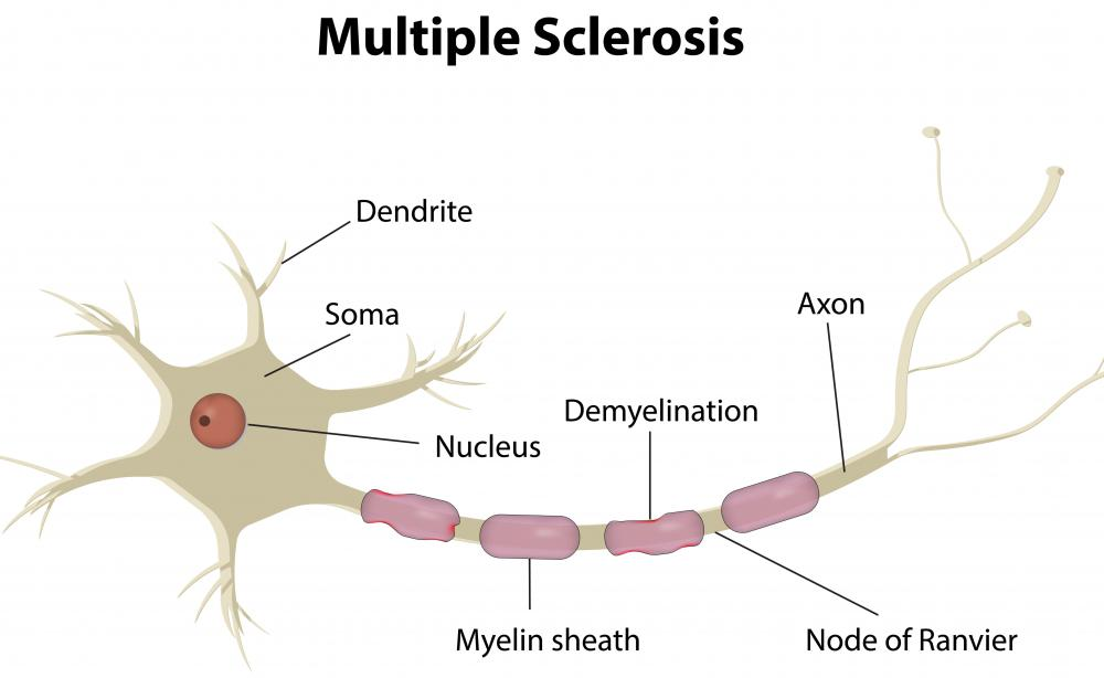 White matter lesions may be a symptom of multiple sclerosis.