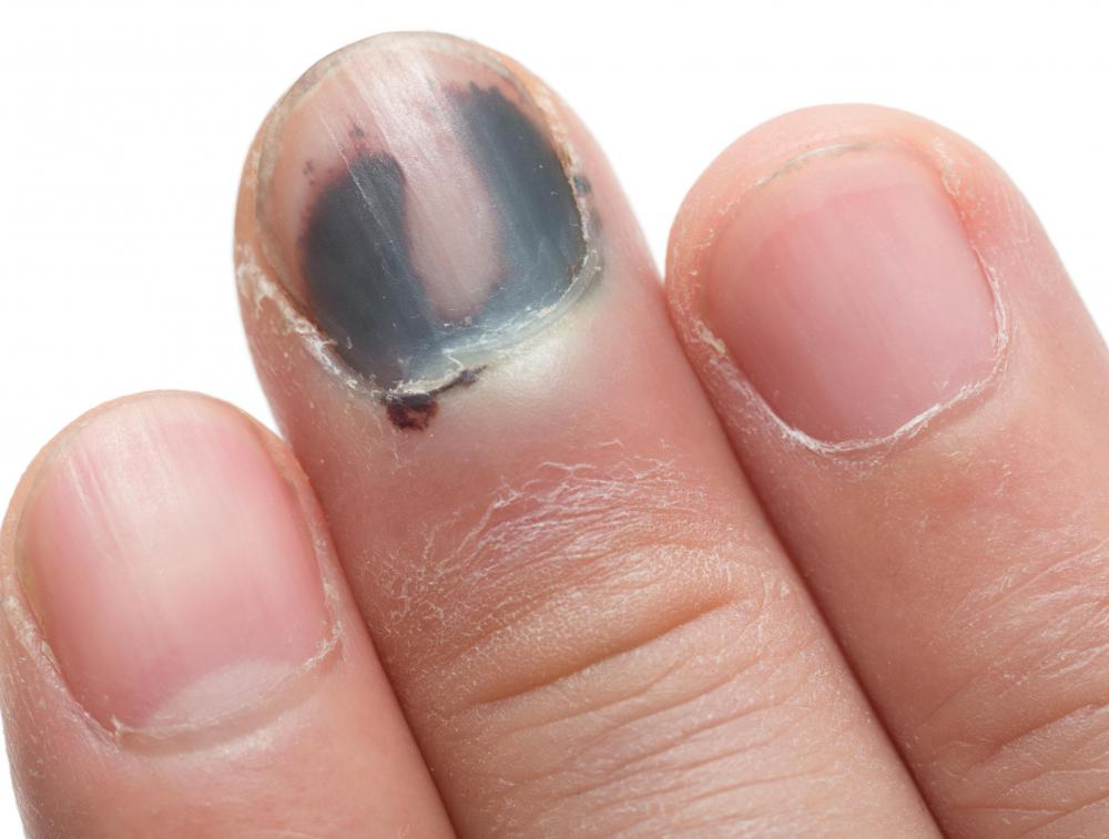 Fingernails may be bruised as a result of a finger fracture.