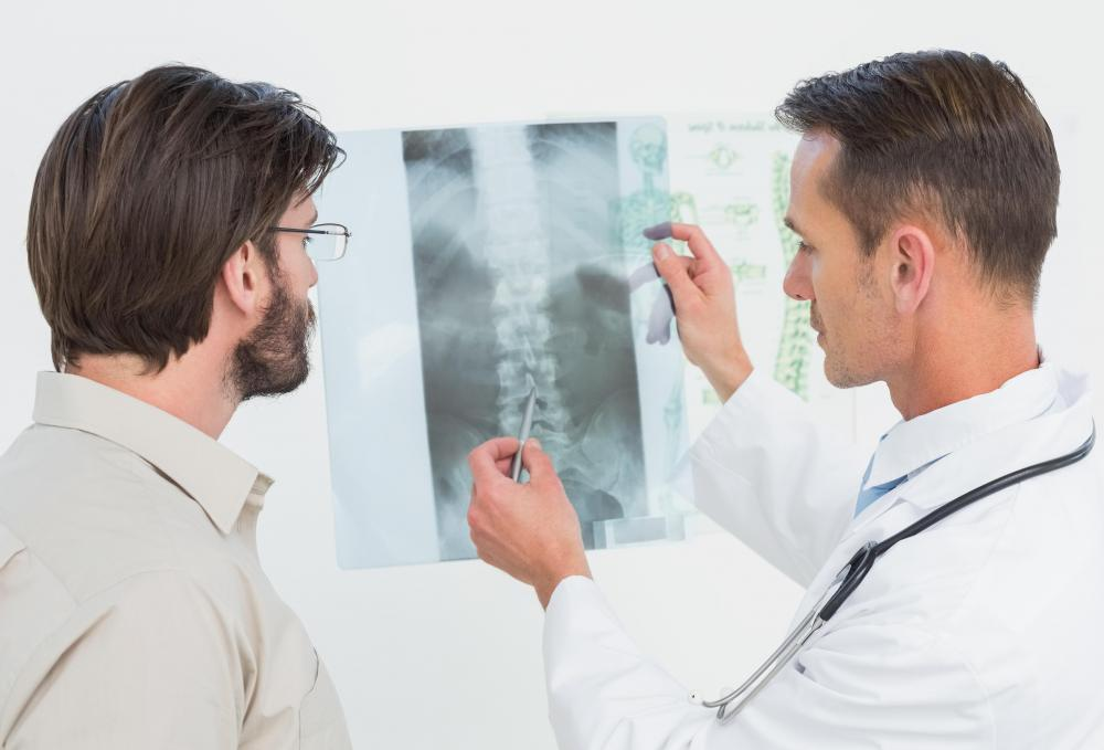 People experiencing herniated disc pain should see a doctor immediately.