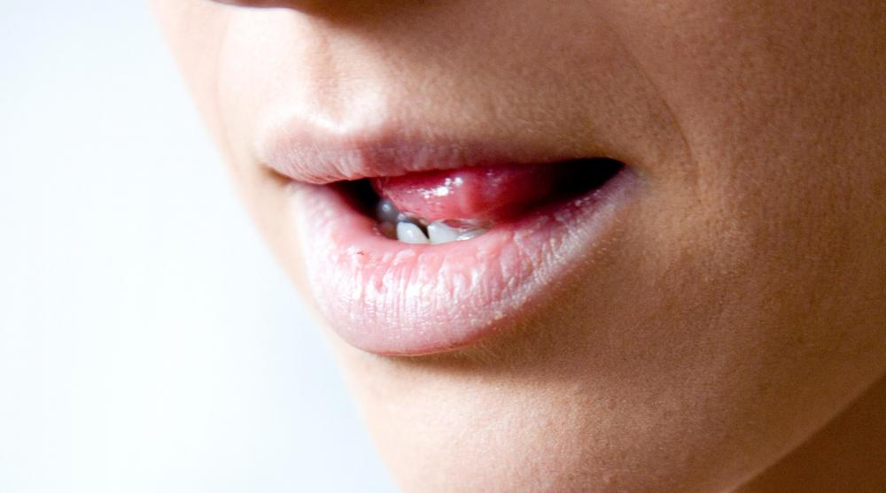 Dry mouth is a common cause of white saliva.