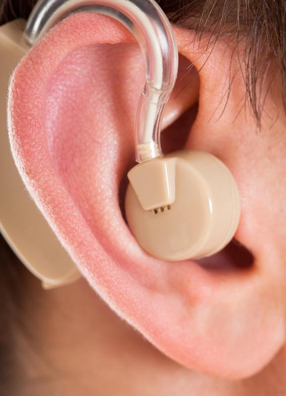 Modern hearing aids are either analog or digital.