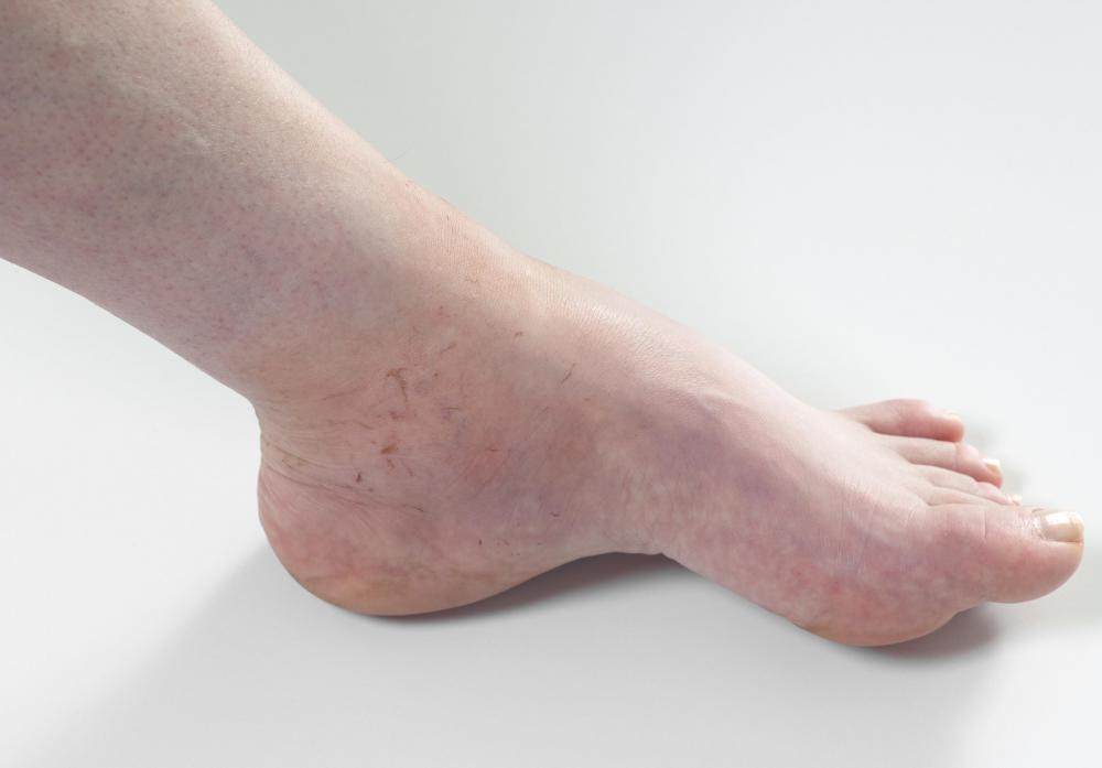 Edema, or swelling from fluid retention.