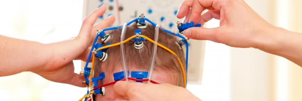 EEG electrodes are placed around the head in order to gather electrical impulses from the brain and direct these to a type of machine that is used as a diagnostic tool for analyzing brain activity.