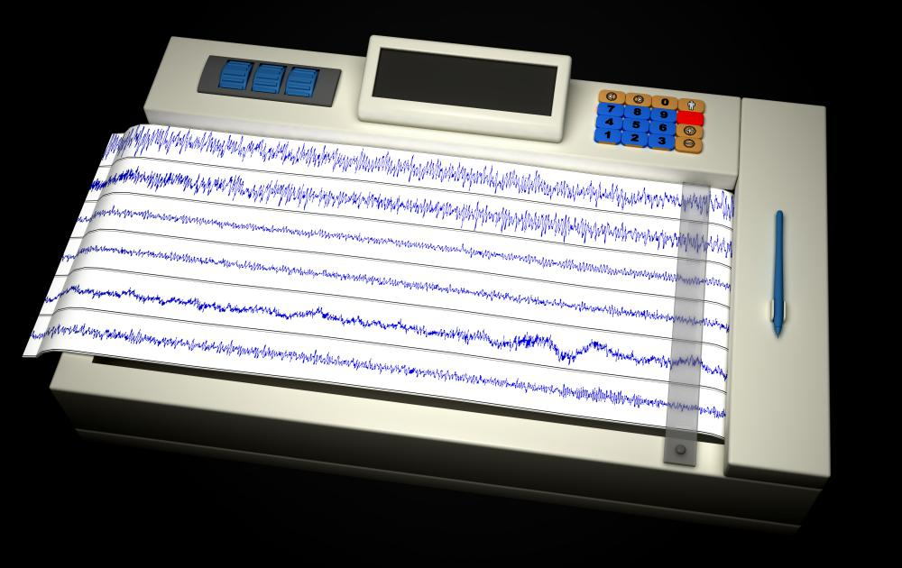 An electroencephalogram -- or EEG -- machine measures electrical impulse activity in the brain and can help give a diagnosis for conditions such as epilepsy.