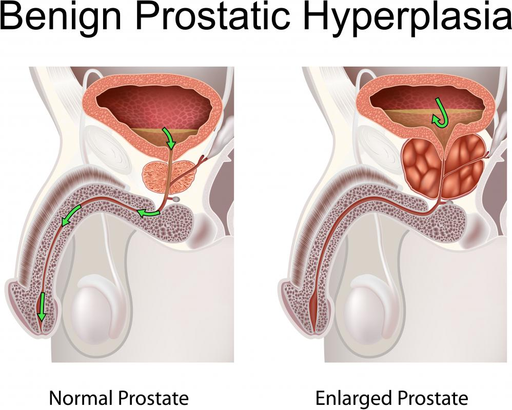 An enlarged prostate may be a symptom of urethral strictures.