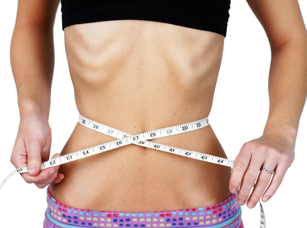A patient who is suffering from bulimia may receive nutrition via a Corpak feeding tube.