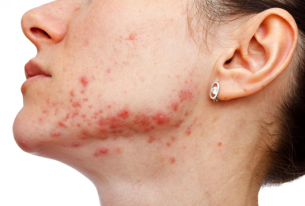 Pixel laser resurfacing might be effective in treating scars that result from severe acne.
