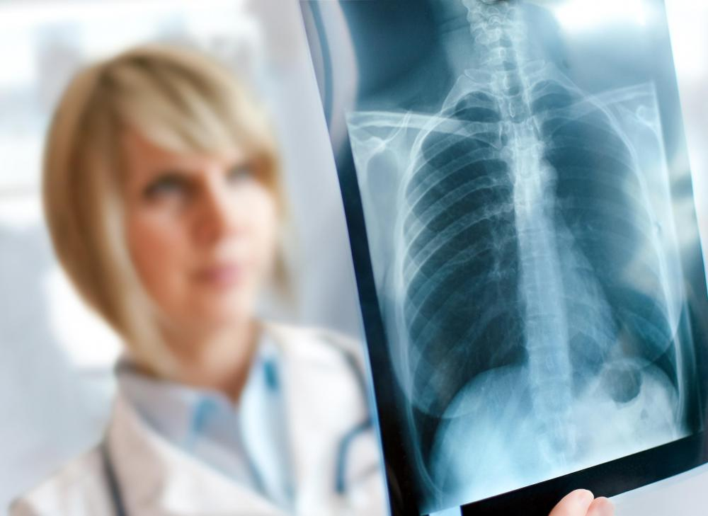 Chest pain and fatigue may be caused by pneumonia, which can be diagnosed via chest X-ray.