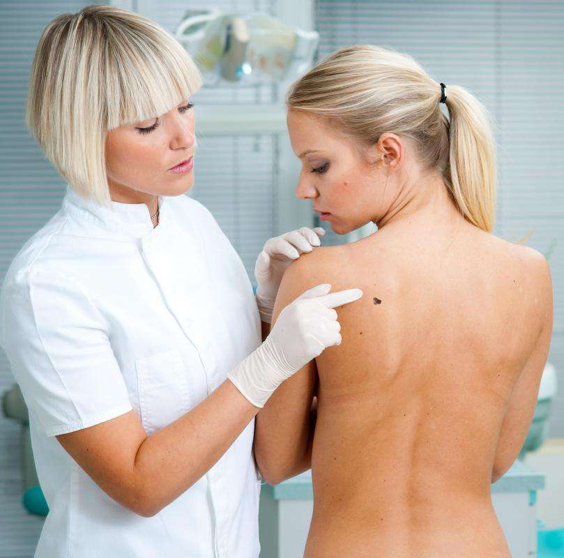 A doctor may perform a biopsy of a suspicious mole to determine whether it is cancerous.
