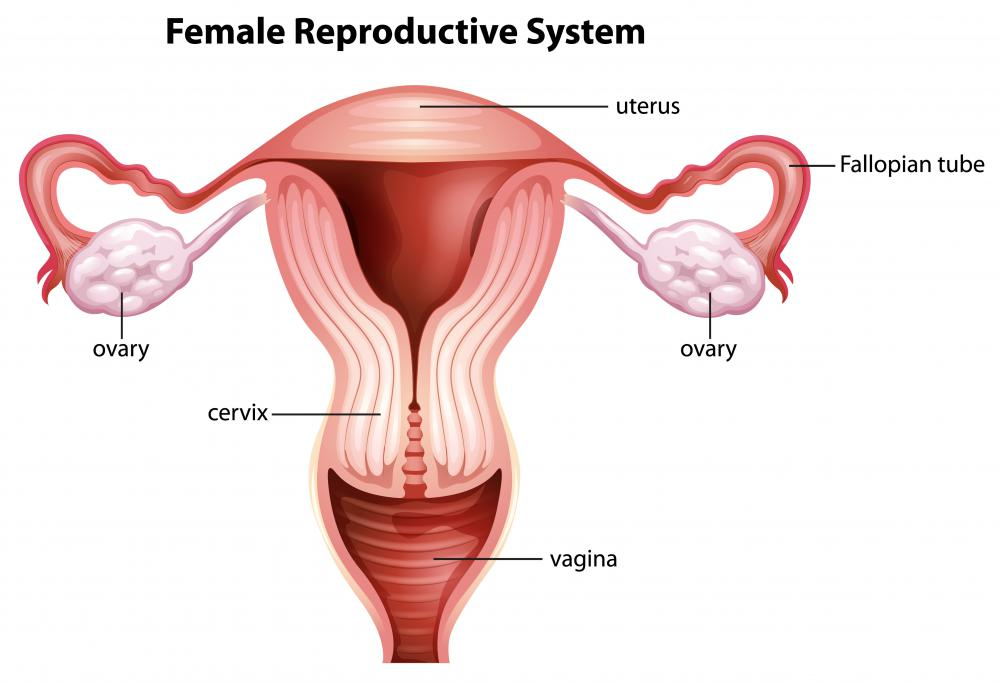 Uterine polyps develop on the lining of the uterus.