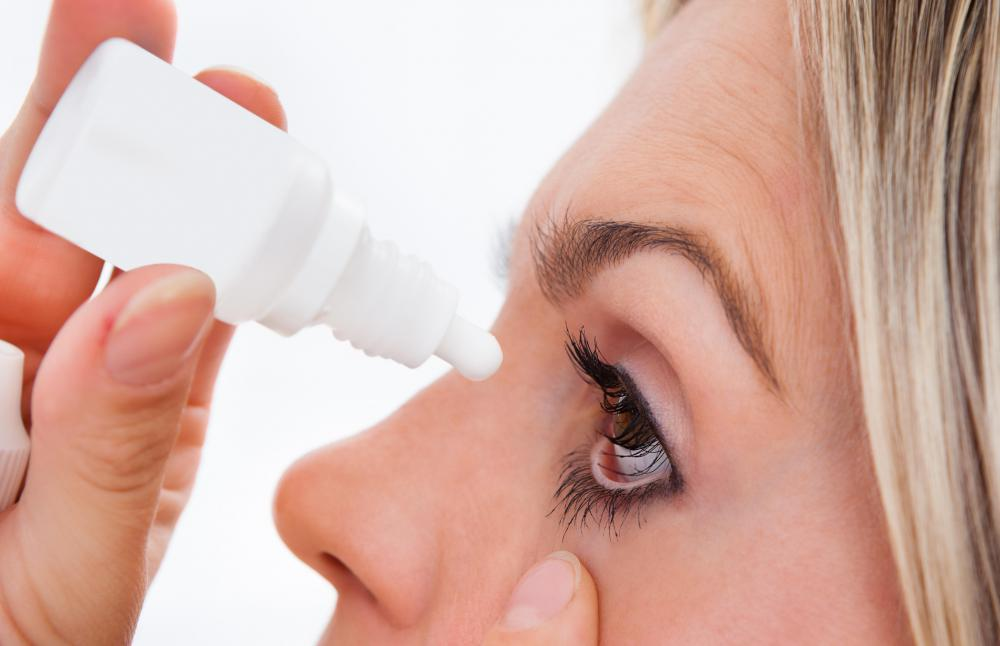 Anti-inflammatory eye drops may be prescribed by a doctor to reduce eye irritation.