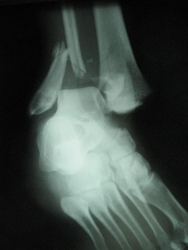 An x-ray of a severe distal fibula fracture.