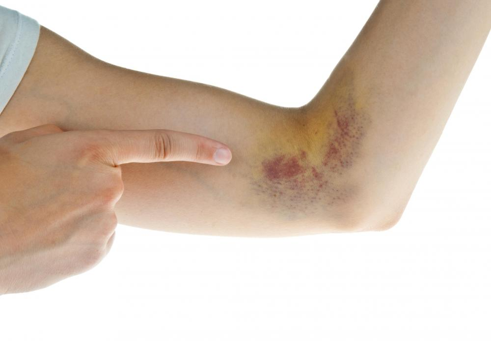 A broken bone or severe sprain may cause bruising to the arm.