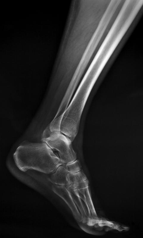 X-rays can be used to determine if a patient has an ankle fracture or sprain.