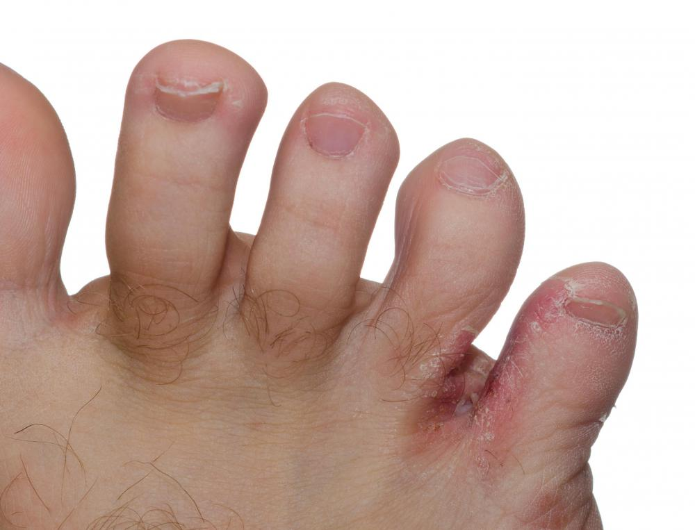 Bath salts can be used to treat athlete's foot.