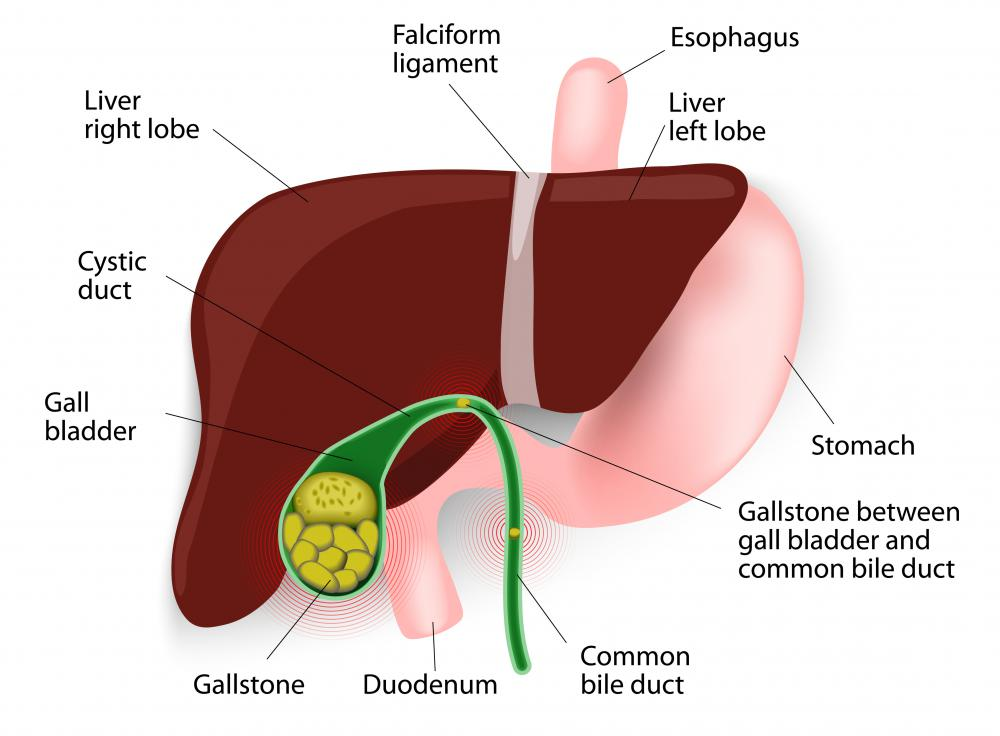 When the body produces super-saturated bile with a high ratio of cholesterol, gallstones may form.