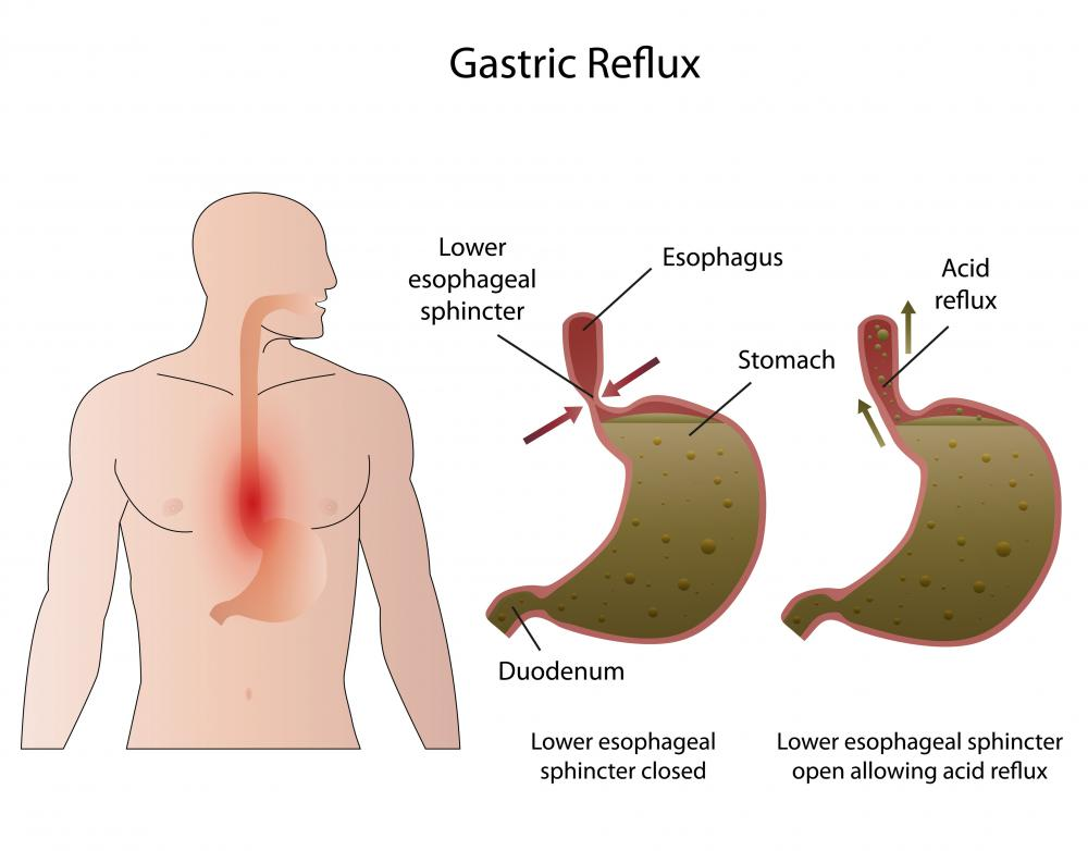 Reflux symptoms in the esophagus can be a sign that the pancreas is not performing properly.