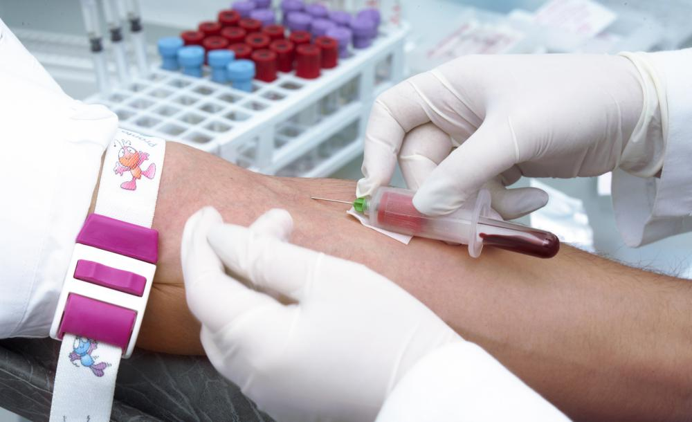 Superficial veins located close to the skin's surface are the best sites for venipuncture.
