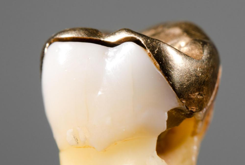 Leftover tooth decay is one cause of tooth pain following a filling.