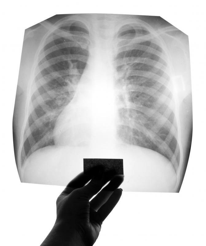 A doctor may order a chest x-ray to determine the location of air pockets.