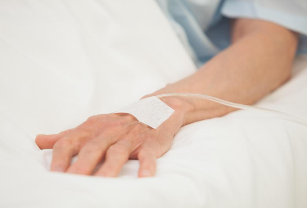 The hand is the most common placement for an intravenous line.