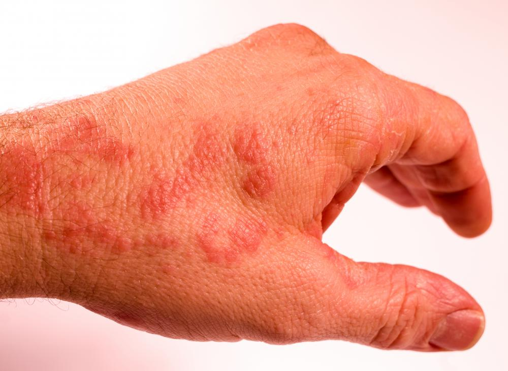 Dermatological effects from aspartame use can include rashes and hives.