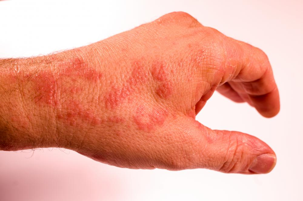 Bath salts may be helpful in relieving a rash.