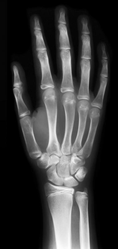 An X-ray, a type of medical imaging.