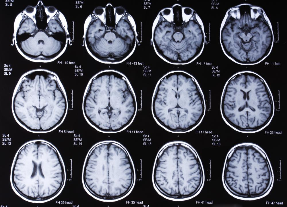 An image of the brain taken with an MRI scanner, a type of diagnostic imaging equipment.