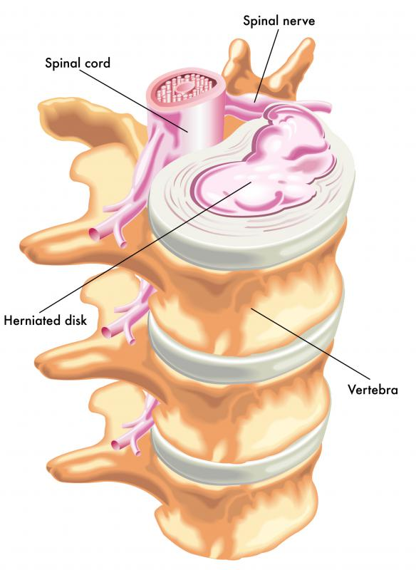 A herniated disc on certain parts of the spinal cord may require spinal stenosis surgery.