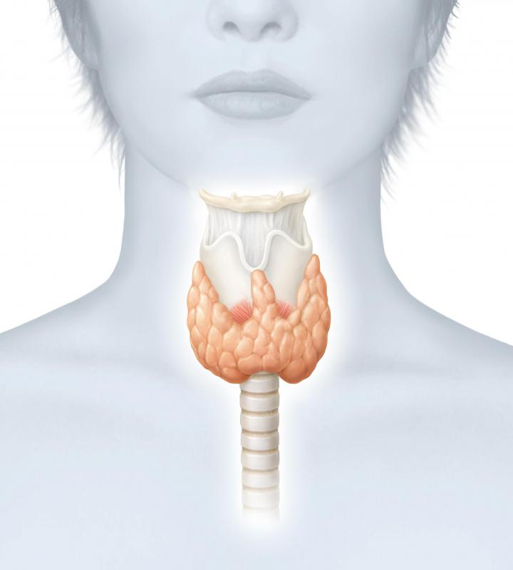 Thyroid cancer most often develops in the form of a solitary nodule.