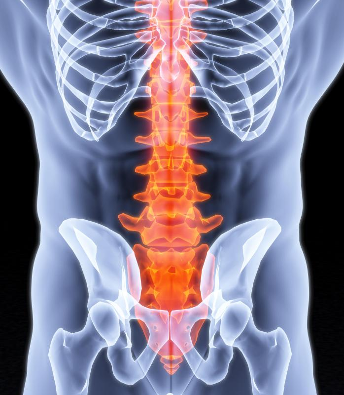In a classic case of lumbar spondylosis, the space between the discs of the lower spine becomes narrowed.