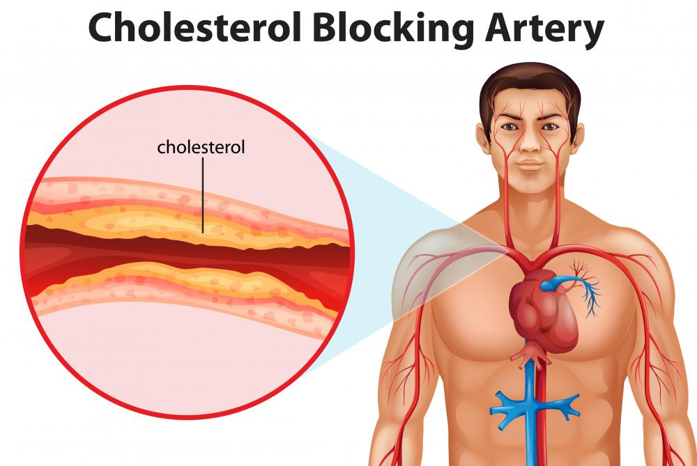 It's possible that SPH has a role in controlling how cholesterol is distributed within the body.