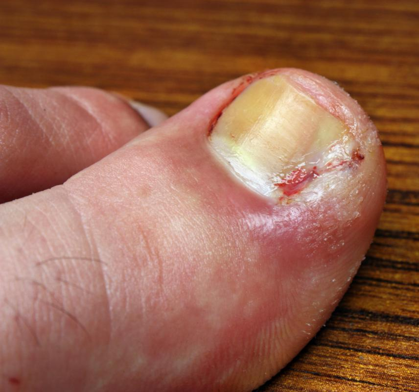 A thickened and discolored toenail is likely a sign of a fungal infection.