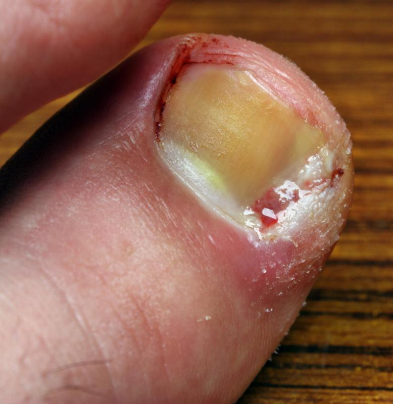 If treatment for an ingrown toenail is given quickly, it may require a visit to a doctor.