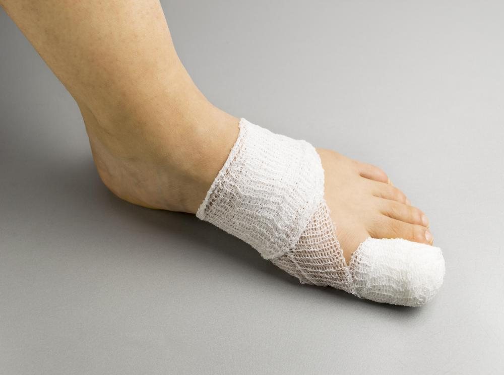 Foot weakness may occur as a result of a toe fracture.